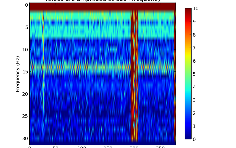 Epileptic Seizure Detector (3)